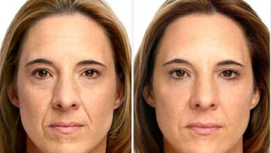 Photo of How long does Botox take to work?